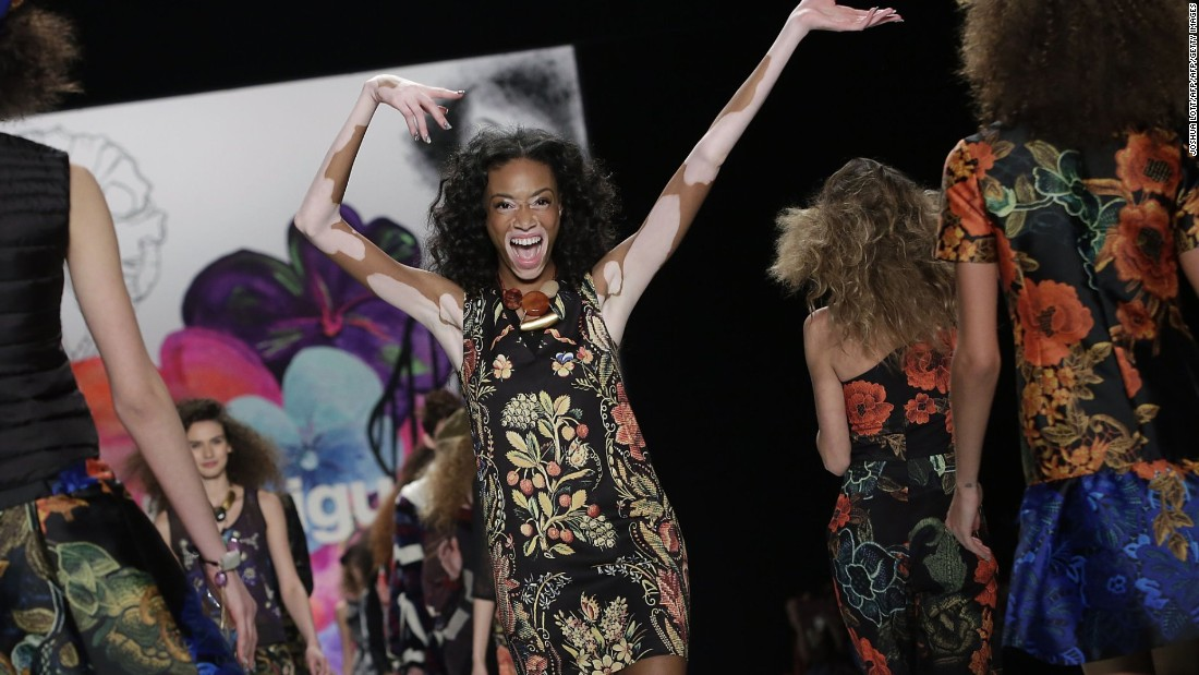 "Winnie Harlow has walked runways at New York, London and Paris fashion weeks, but doesn't want her popularity to be a mere flash in the pan, acknowledging that whilst ""the industry is opening up, [it] still needs to accept various forms of beauty as a standard, as opposed to an occurrence now and then."""