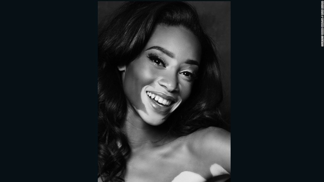 "Chantelle Brown-Young became a finalist on season 21 of ""America's Next Top Model"" in 2014. She didn't win but became a fan favorite, voted back into the contest by viewers after exiting earlier in the season."