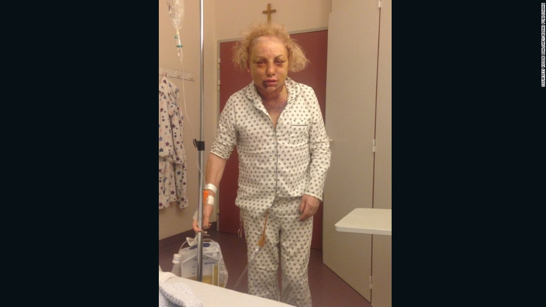Maloney has spent over $150,000 on operations to feminize her appearance. After having facial surgery in Belgium, she was left in intensive care due to excessive swelling.