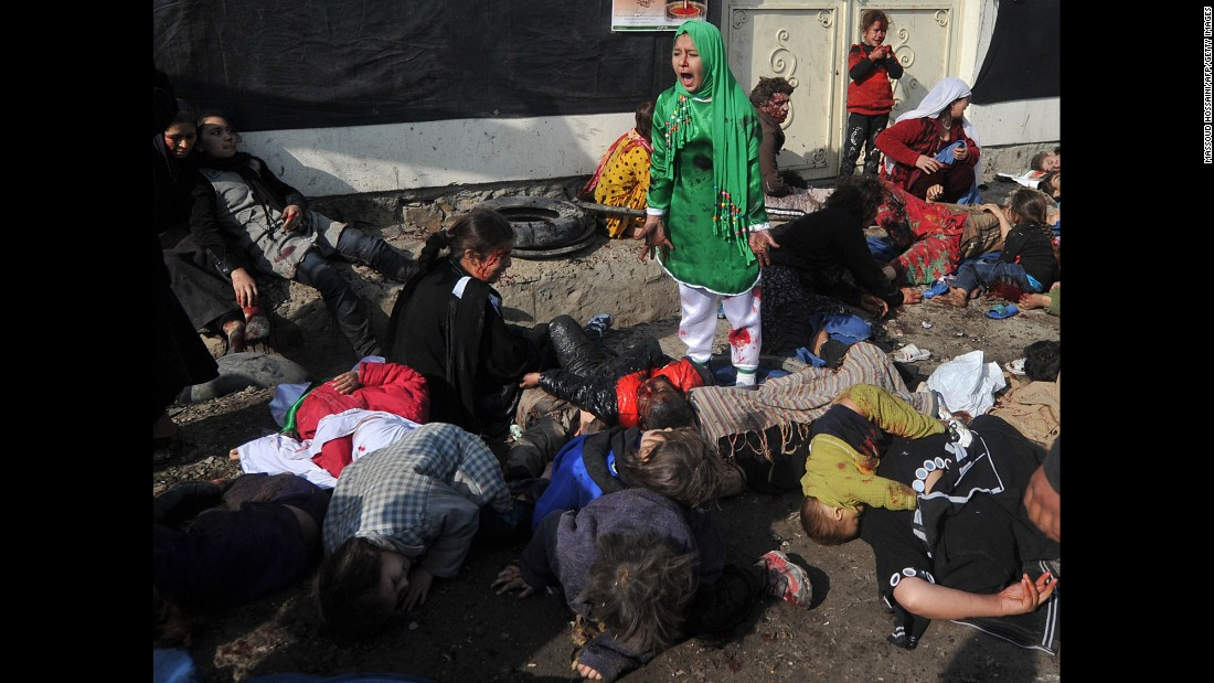 This photo, dated December 6, 2011, shows an Afghan Shia Muslim, 12-year-old Tarana Akbari, crying near victims of an attack on a religious ceremony at the Abul Fazel shrine in Kabul. Massoud Hossaini won Agence France-Presse's first Pulitzer Prize for this picture in 2012 in the breaking news photography category. Hossaini used a Nikon camera with a zoom lens.<br />