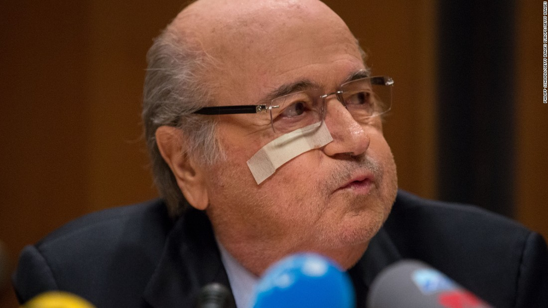 FIFA president Joseph S. Blatter during a press conference he convened in response to the ban imposed by FIFA's Ethics Committee. The Swiss was sporting a band aid under his right eye -- thought to be because of a recent mole removal.