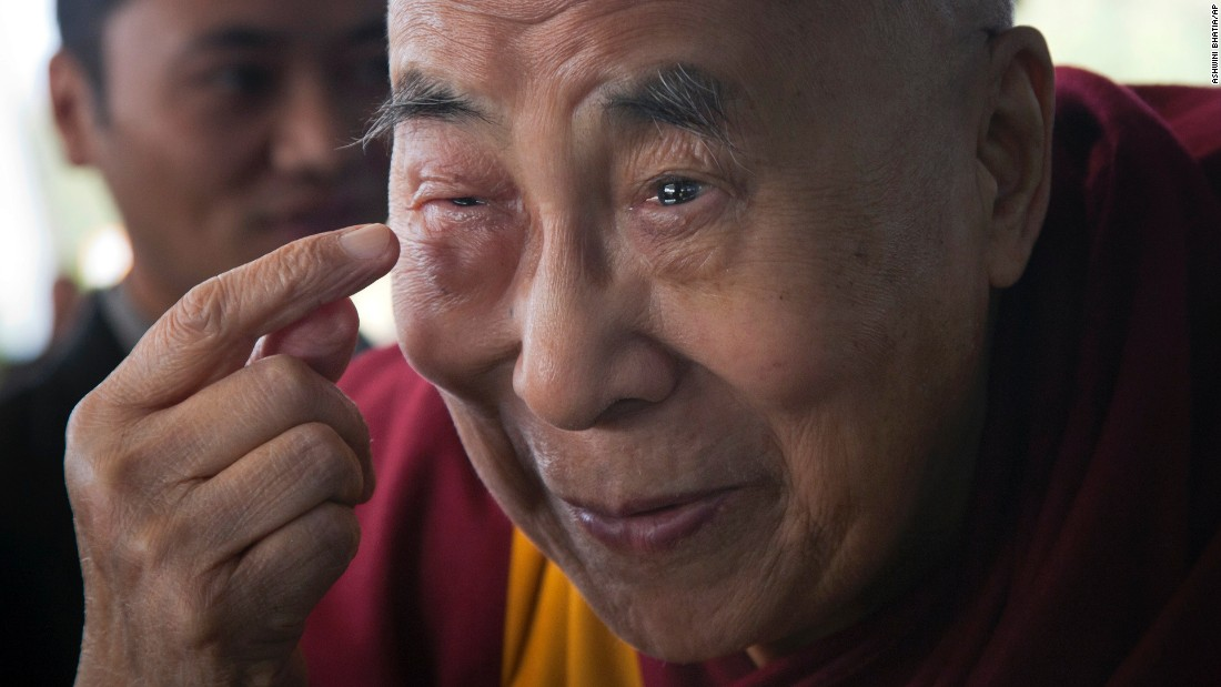 The Dalai Lama points to his swollen right eye as he talks to journalists before boarding a flight in Dharamsala, India, on Tuesday, January 19. The spiritual leader said he was flying to Minnesota for a regular medical checkup.