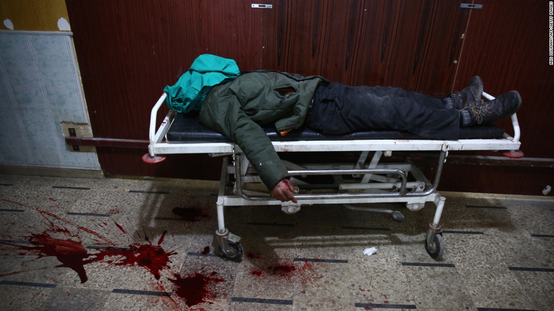 A dead body lies on a stretcher after airstrikes struck the rebel-held town of Douma, Syria, on Saturday, January 16.