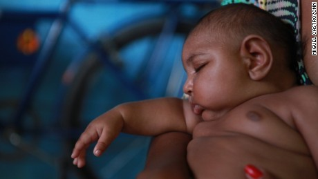 A number of Brazilian babies are being born with microcephaly.