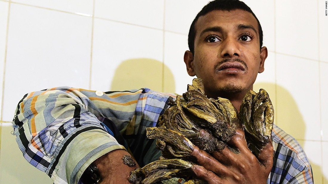 Bangladesh's 'tree man' to have surgery - CNN