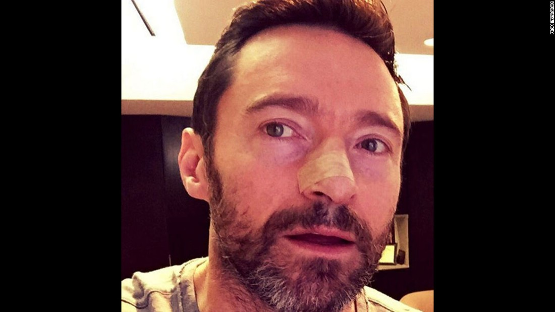 "Hugh Jackman posted <a href=""https://www.facebook.com/HughJackman/photos/a.174754789253168.44275.167633226631991/1037963022932336/?type=3"" target=""_blank"">a photo to Facebook</a> indicating he had been treated for skin cancer for at least the fourth time since 2013."