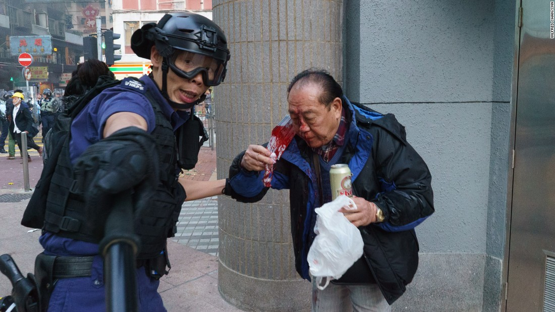 A man is bloodied after a police charge.