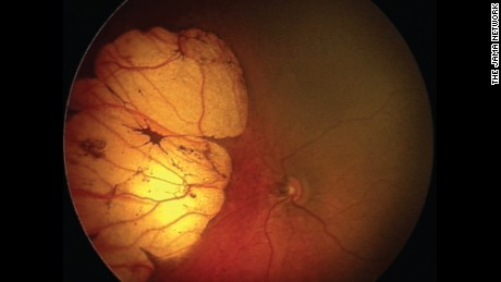 A huge lesion on the retina of a 20-day-old infant born with microcephaly.
