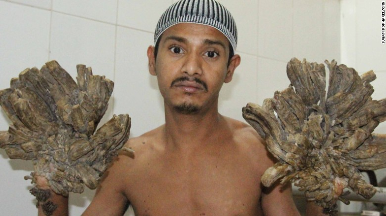 'Tree man' gets his hands back