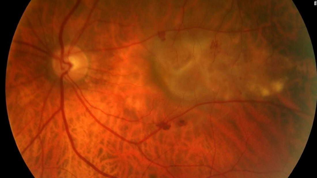 AMD affects an estimated 15 million people in North America and up to 30 million worldwide. Pictured, a severe form of Age-related Macular Degeneration (AMD) seen from the back of the eye.