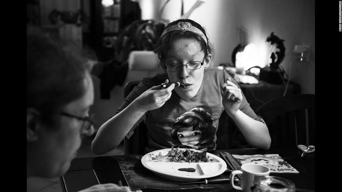 Suzanne Heijnen has Prader-Willi syndrome. The genetic disorder's most prominent symptom is an insatiable appetite -- you never feel full. Photographer Peggy Ickenroth spent two weeks with Suzanne and her family, hoping to learn more about the disease and how it affects people.