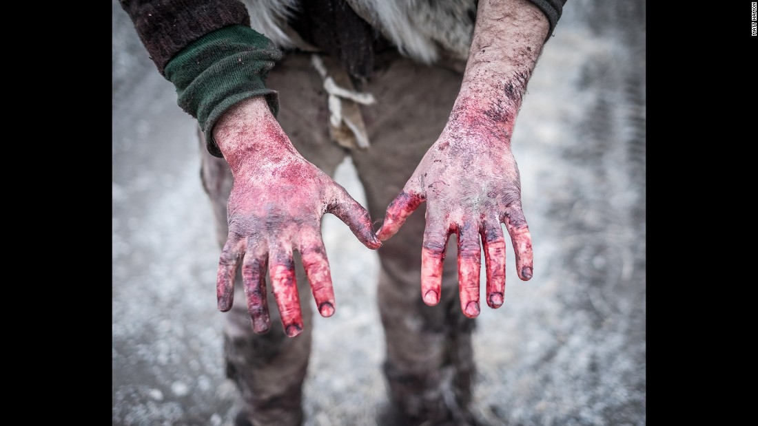 Alex's hands after a day of scavenging buffalo carcasses. The group sustains themselves by scavenging meat from bison carcasses left by hunters.