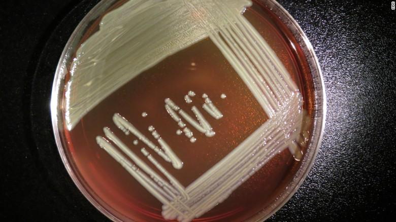 Elizabethkingia outbreak spreads