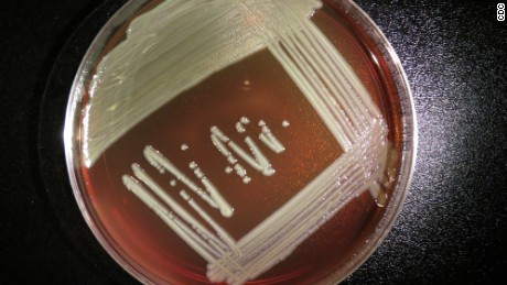 Elizabethkingia outbreak spreads; source still a mystery