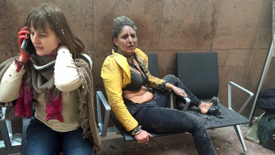 Two wounded women are seen in the airport.
