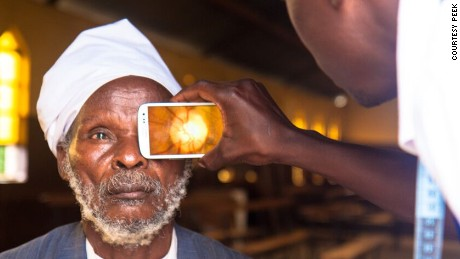 How a smartphone app can cure blindness in poor countries
