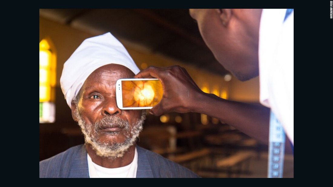 Peek's technology helps to detect cataracts, glaucoma, macular degeneration, diabetic retinopathy and signs of nerve disease. It can also pick up other health problems including severe high blood pressure and diabetes. <br />