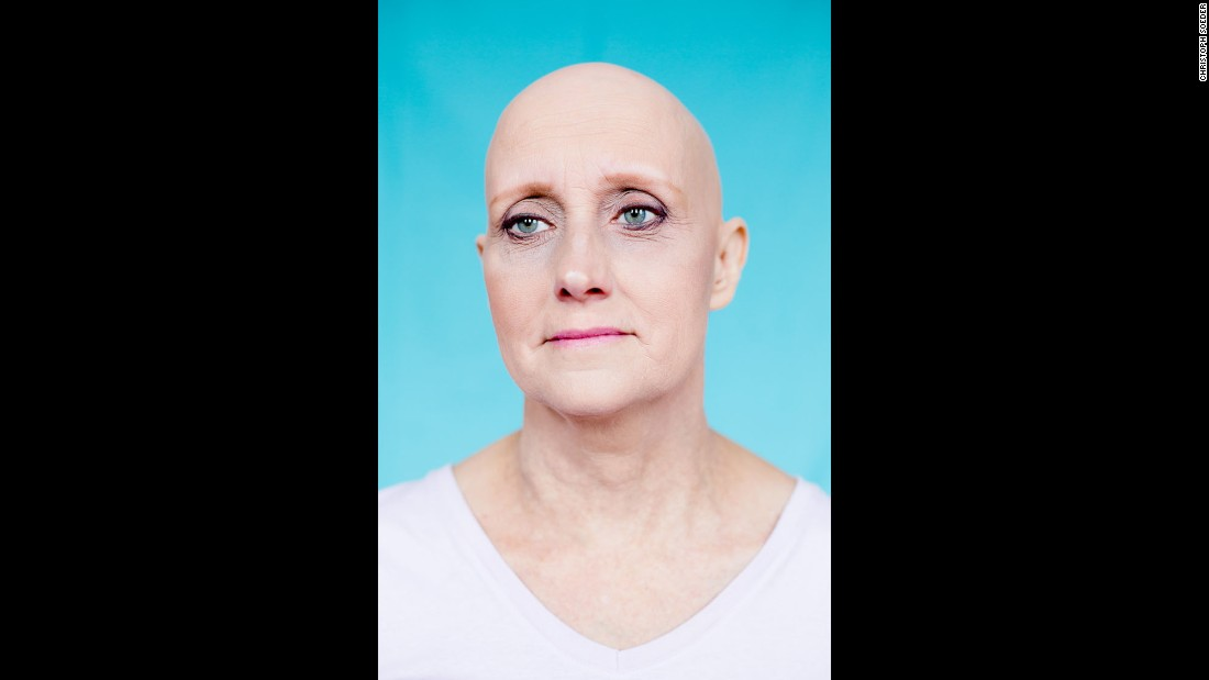 "Pammy is one of the women with alopecia who posed without a wig for photographer Christoph Soeder. His ""Unfading"" series gave them confidence, he said: ""It really emphasizes people's individuality. It just increases their uniqueness."""