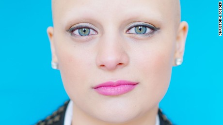 Gabrielle who poses for the camera in her home town Swindon, England, was diagnosed with alopecia when she was four years old. Since then she has never met anyone else affected by the same condition. Through this project she met Emily P.  who also took part in the project and lives in Swindon, England.