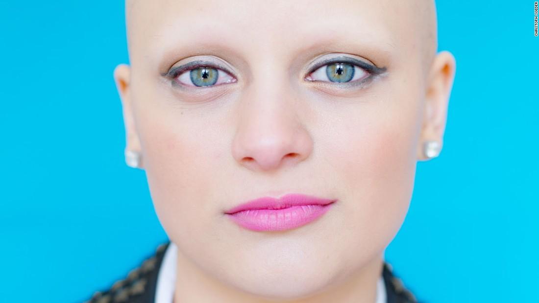 Wig-free portraits empower women