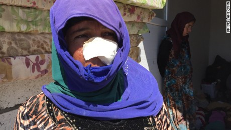 This woman was injured when the house she was in was hit by a mortar; her son, 15, was killed