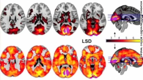 effects of lsd on human brain curnow intv_00003204