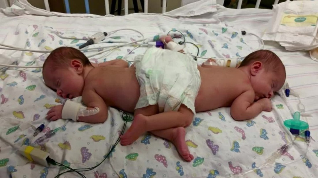 conjoined twins Conjoined twin: conjoined twin, one of a pair of twins who are physically joined and often share some organs fusion is typically along the trunk of the body or at the front, side, or back of the head.