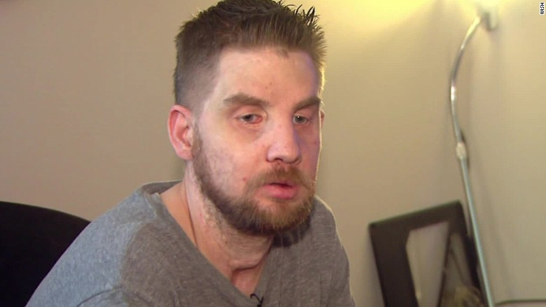 Man with face transplant speaks about transformation