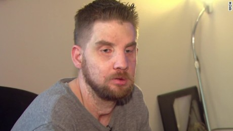 face transplant man shares story dnt_00010011