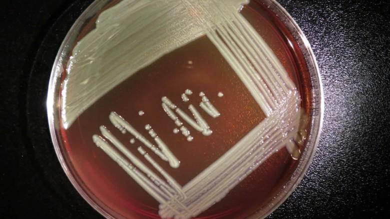 Elizabethkingia: A rare, deadly bacteria