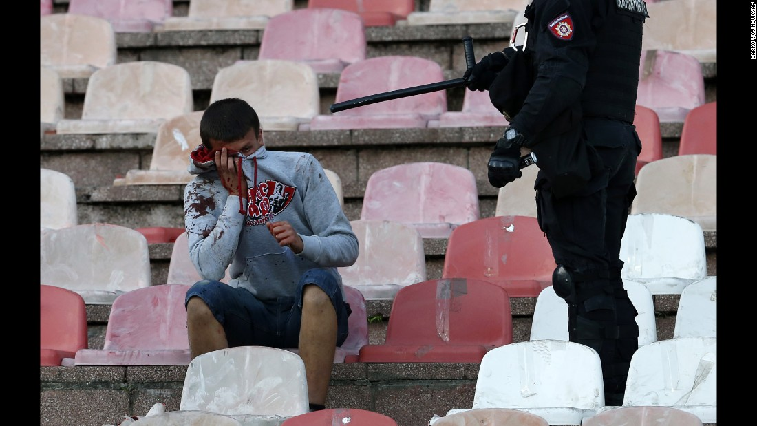 A Serbian riot police officer gestures toward an injured soccer fan during a Serbian National soccer league derby match between Red Star and Partizan, in Belgrade, Serbia, on Saturday, April 16. The game ended in a 1-1 draw.