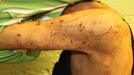 cnnee pkg p2 rafael romo zunduri relato torturas escape_00014321