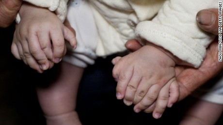 The mother shows her son's hands. He has 15 fingers, two palms on each hand and no thumbs.