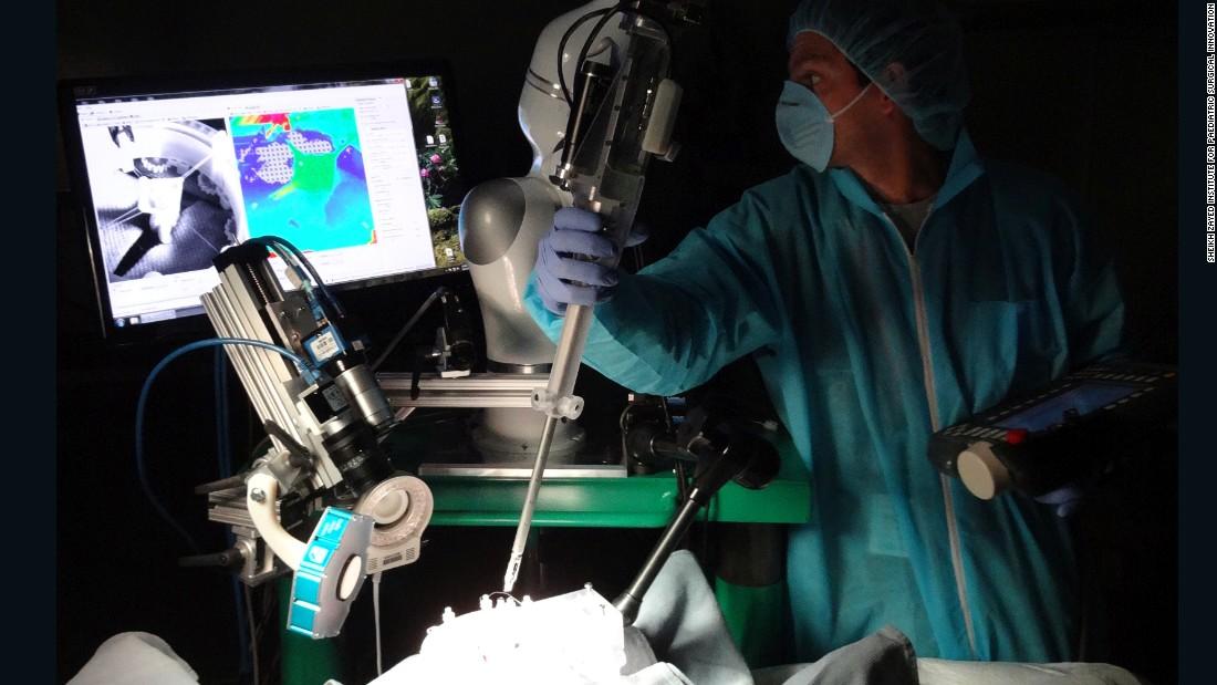 "The <a href=""http://edition.cnn.com/2016/05/12/health/robot-surgeon-bowel-operation/index.html"">Smart Tissue Autonomous Robot</a> (STAR) is the first autonomous robot to perform a soft-tissue operation. The supervised robot stitched together a pig's bowel during open surgery."