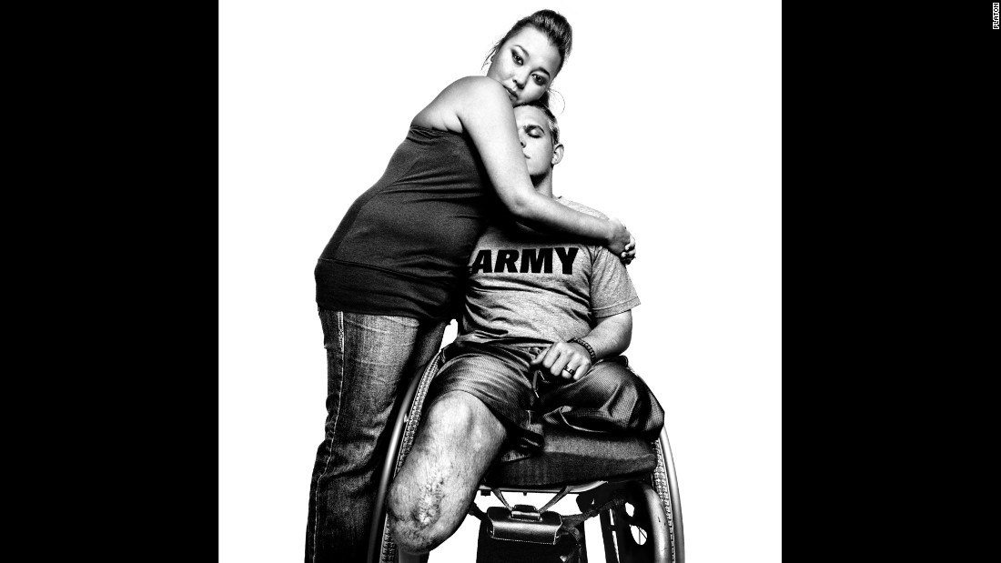 Army Sgt. Tim Johannsen lost both of his legs on his second tour of Iraq. He is embraced by his wife, Jacquelyne Kay.
