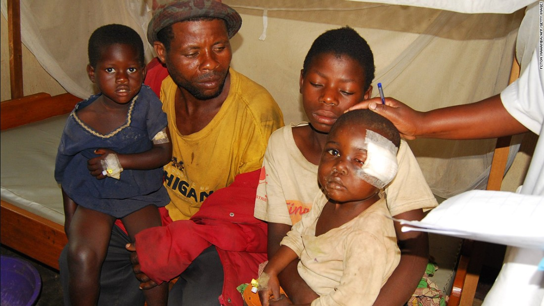 "An injured child receives medical care at a hospital in the North Kivu province in February 2016. He was among the survivors of attacks in which around 15 people of the Nande ethnic minority were <a href=""http://www.un.org/africarenewal/news/can-un-patch-things-congo"" target=""_blank"">killed by men armed with knives</a> in the Miriki area of Lubero, on January 6 and 7, 2016."