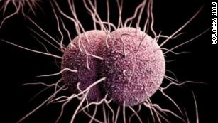 Gonorrhea outbreak in Hawaii shows increased antibiotic resistance