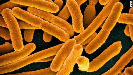 A dreaded superbug found for the first time in a U.S. woman