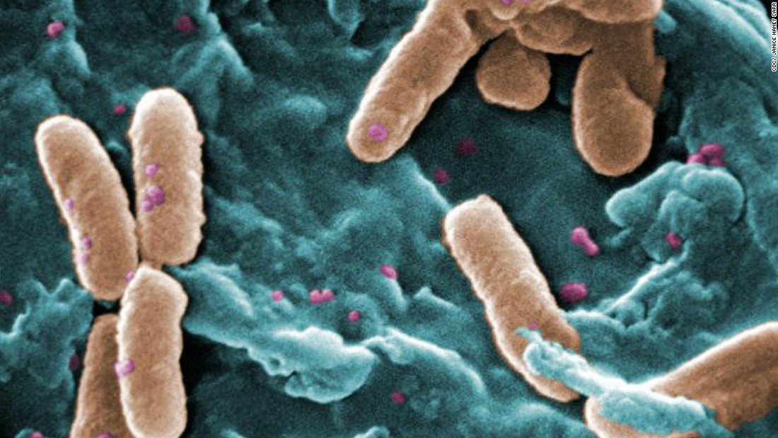 "Pseudomonas bacteria can be deadly for patients who are in critical care. According to CDC it's the cause of about <a href=""http://www.cdc.gov/hai/organisms/pseudomonas.html"" target=""_blank"">51,000 healthcare-associated infections in the United States</a> each year. More than 6,000 of these cases are multi-drug resistant, leading to around 400 deaths per year. The most serious Pseudomonas infections usually occur in hospitals, affecting patients who are on breathing machines, using catheters or with wounds from surgery.<br />"