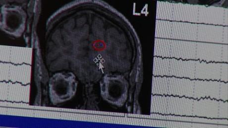 Epilepsy_00011509