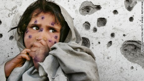 Afghanistan making progress, but scars remain