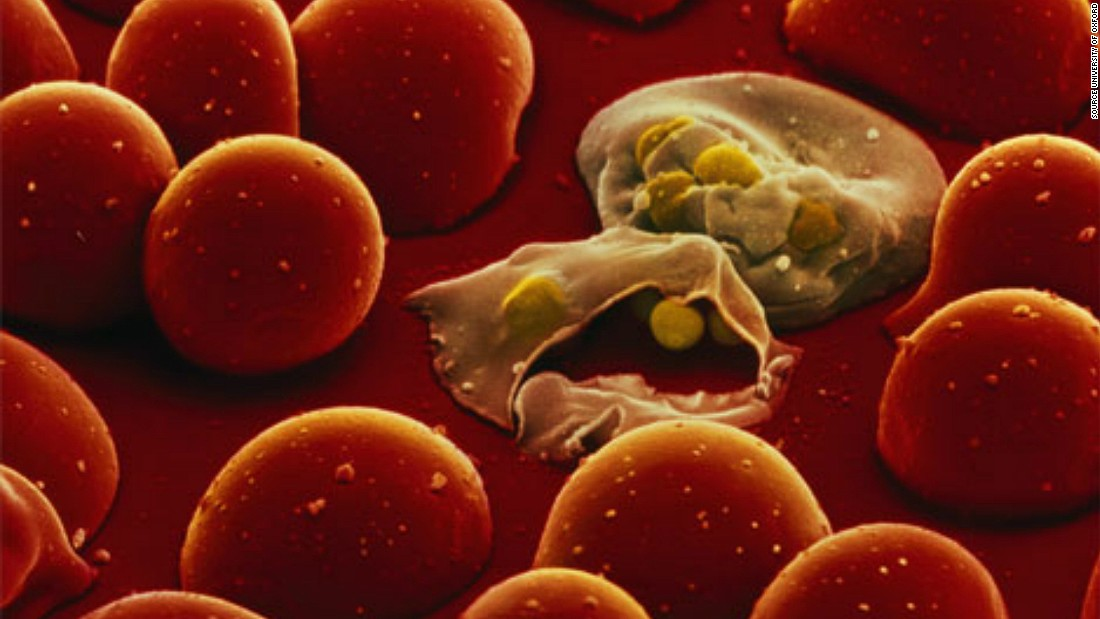 The life cycle of the malaria parasite is complex and has many stages of development inside the human body. One stage is their transformation into 'merozoites' where they infect blood cells and replicate inside them, growing in number until the cells burst (pictured) releasing them into the bloodstream to infect more cells.