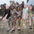 malawi albinos 01