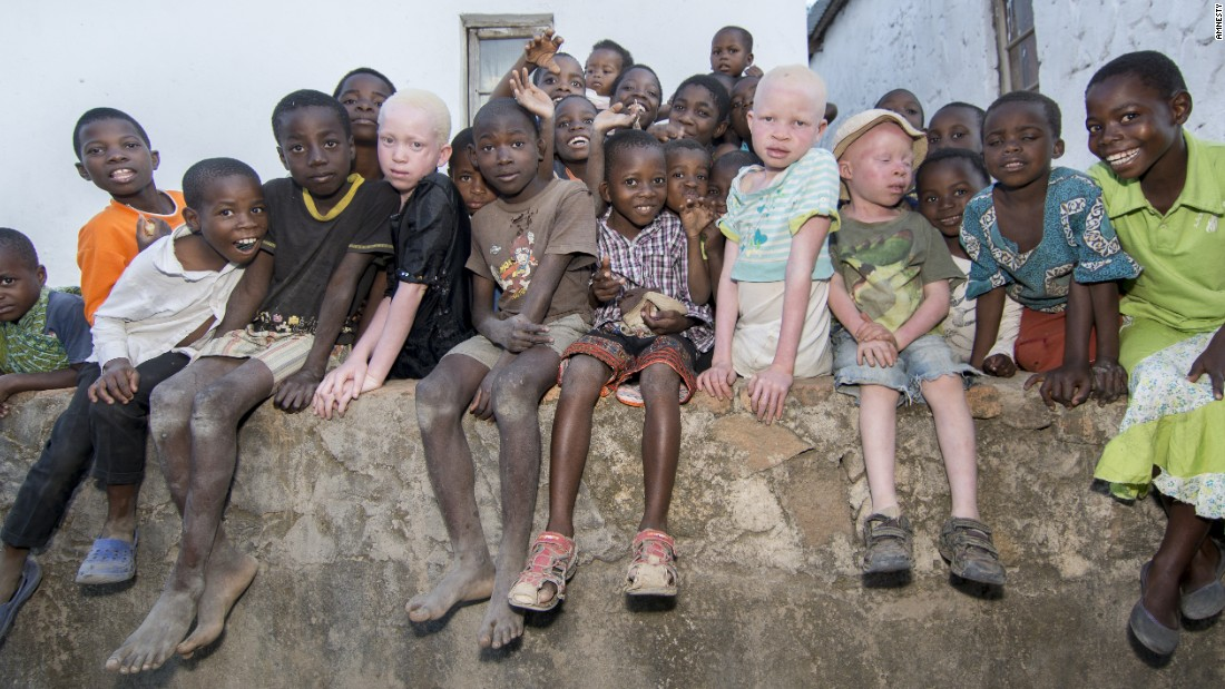 Criminal gangs hunt albinos to kill and dismember them, selling their bones.