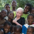malawi albinos 02