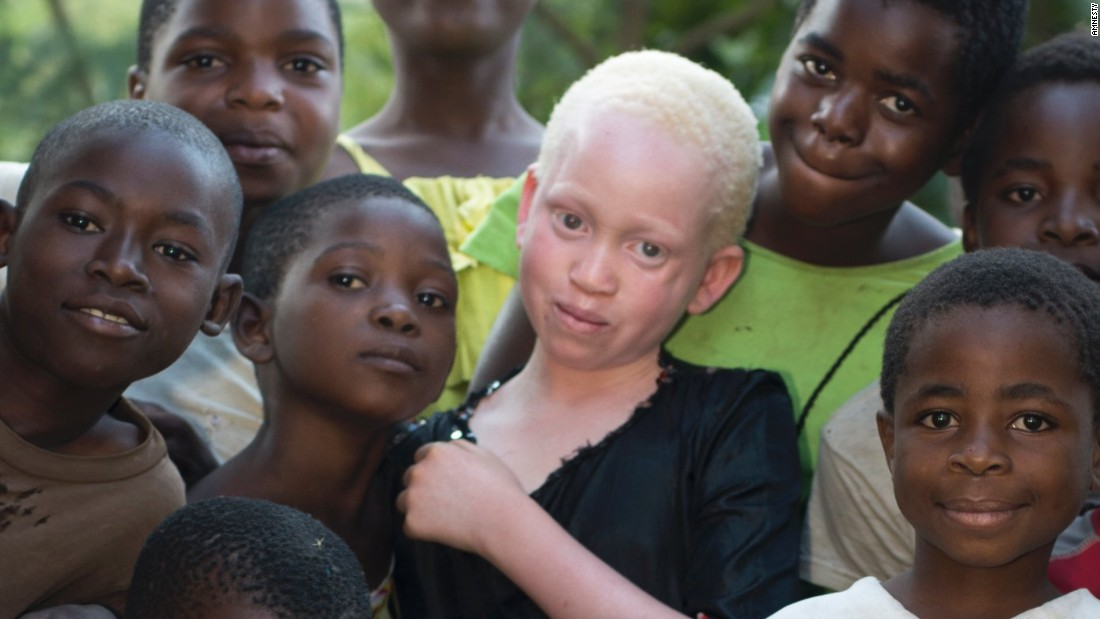 Albino bones are used by witchdoctors, who believe the body parts bring wealth, happiness and good luck.