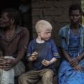 malawi albinos 03