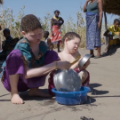 malawi albinos 04