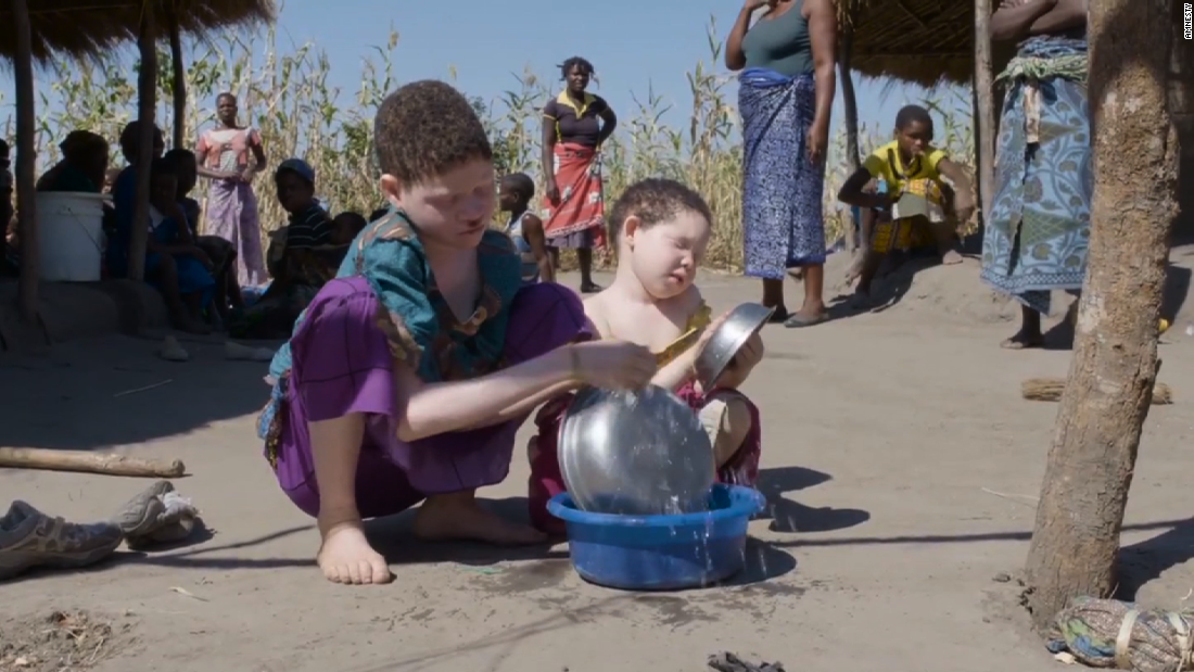"The United Nations warns that Malawi's albinos are at risk of ""total extinction."""