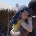 malawi albinos 5